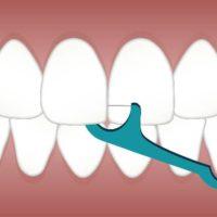 歯石除去と嚥下障害